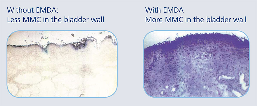EMDA treatment for bladder cancer