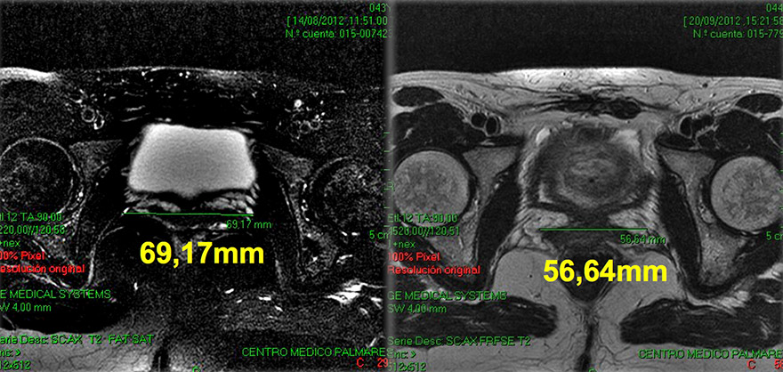 MRI scans: before Intimalase treatment (left); 1 month after (right)