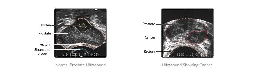 trus-biopsy